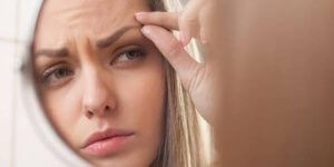 Göz Kapağı Şişliği Nasıl Giderilir?