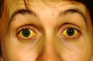 Gilbert Sendromu Nedir? Belirtileri Nelerdir?